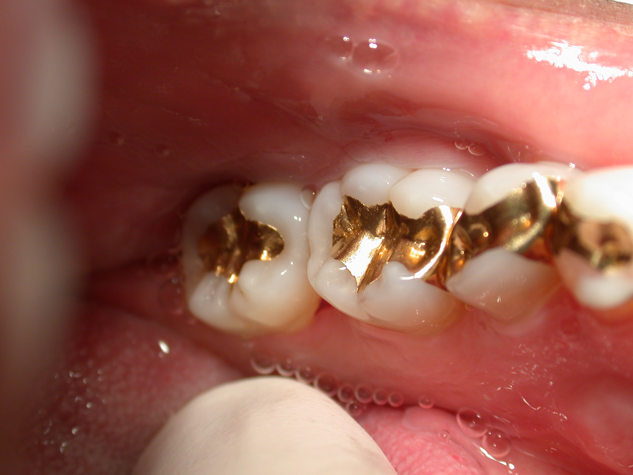 Gold Dentistry